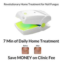 Portable Home Use Cure Toe Nail Fungus Blue Light & Laser Light Therapy Device Onychomycosis Anti Fungal LLLT Physiotherapy New cozing new lllt cold laser therapy physiotherapy device laser pen for acupuncture home use