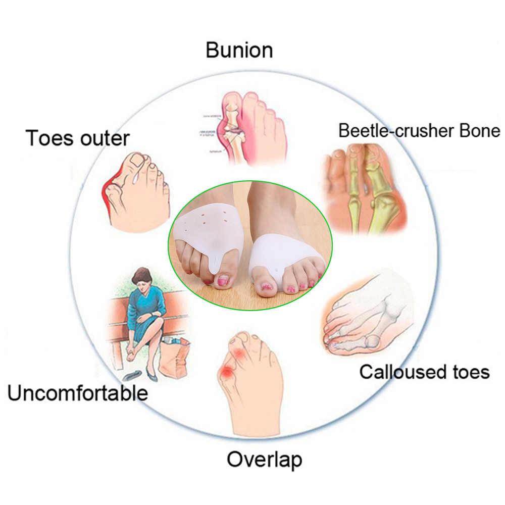 Sumifun 2 piezas para el cuidado de los pies Hallux Valgus ortopédico separador de los dedos plantillas correctoras dispositivo Cloven masajeador de pies Z24601