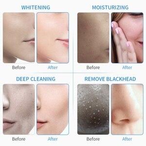 6 in1 H2-O2 гидро дермабразия RF био-спа лифтинг лица акне очиститель пор аппарат гидро-и микродермабразии инструменты для ухода за кожей