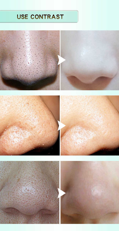 Mango Tira Nariz Removedor De Cravo Máscara Preta Poros Tratamento Da Acne Óleo Cuidados Face Lift Reafirmante descascando Zona T- controle Para A Pele