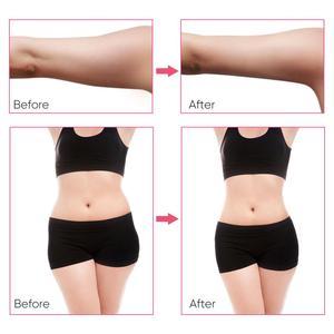Image 3 - 40K cavitación ultrasónica cuerpo Shaper grasa apretar la piel Fitness pérdida de peso RF eliminación de arrugas Anti envejecimiento belleza cuidado de la piel herramienta