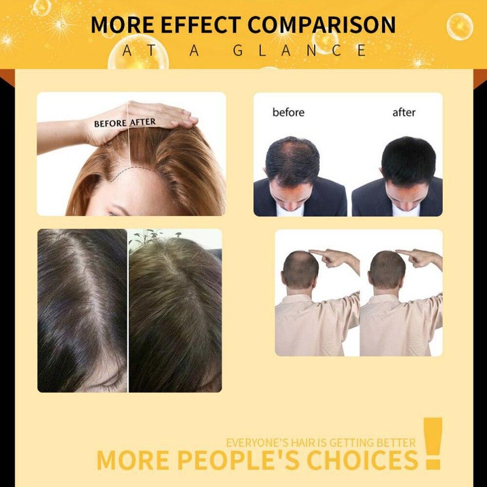 Fast Hair Growth Serum