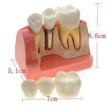Dentale Dimostrazione Denti Modello di Impianto Analisi Crown Ponte