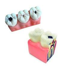 Dental Model Caries Model Dental Teeth Model for Teeth Disease Demonstration Model