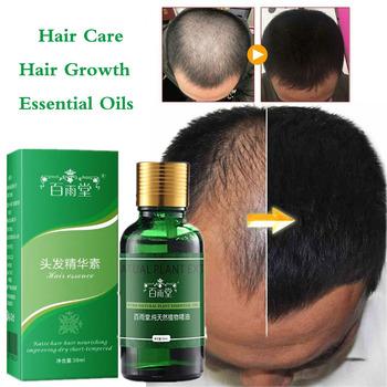 Produkty Esencji Olejki eteryczne do wzrostu włosów Produkty przeciw wypadaniu włosów Pielęgnacja urody Szybciej Serum do pielęgnacji włosów Rosnąca gęstość tanie i dobre opinie NoEnName_Null 2017658923 CN (pochodzenie) Produkt do wypadania włosów pure plant natural extract 30ml BYT002