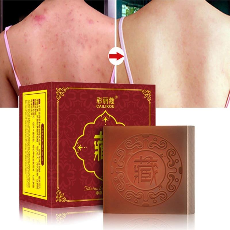 Tibetan Handmade Soap Moisturizing Oil-control Shrinking Pores Anti Mites Anti Acne Cleansing Soap 100g 2020
