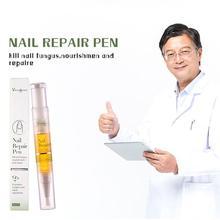 Уход за ногтями, жидкая ручка, анти-грибковая инфекция ногтей онихомикоз паронихии носок Лечение грибка ногтей