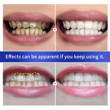 Teeth Whitening Powder Toothpaste Dental Tools Health & Beauty