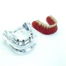 Dentes implante mandibular modelo de reparo dentes implante modelo dentadura dental modelo de ensino