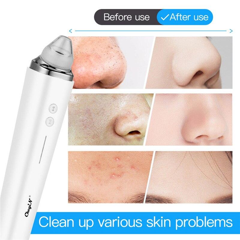 sucção a vácuo poros limpador rosto nariz