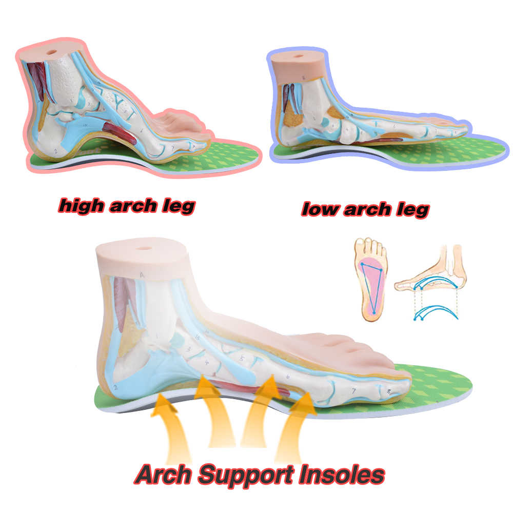 EXP คุณภาพสูง orthotic พื้นรองเท้าแบนฟุตซุ้มประตูรองเท้า Insoles สำหรับฟุตผู้ชายและผู้หญิง flatfoot