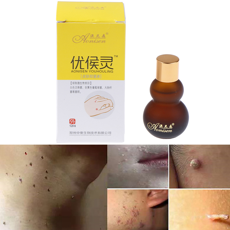 12ml Mole & Skin Tag Cream Dark Spot Removal Wart Tag Freckle Removal Oil Mole Skin Tag Removal Solution Painless Cream