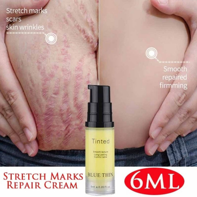 Stretch Marks Removal Essential Oils Pure Natural Stretch Marks Remover Obesity Postpartum Anti-wrinkle Repair Cream Skin Care 6