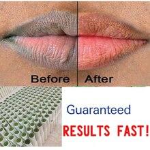 Of Lips Pink Fresh Lightening Bleaching Cream Treatment Remove Dark Smoke Lips lip oil 1pcs