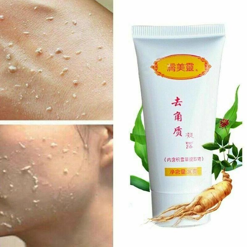 Ginger Exfoliating Gel Facial Cleanser Nourishing Cleanser Hyaluronic Acid Facial Scrubs Dead Skin Removal Gel Skin Care