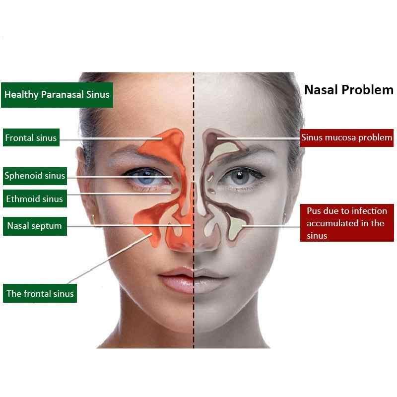 1pc 鼻スプレー慢性鼻炎副鼻腔炎スプレー中国の伝統医学のハーブスプレー鼻炎治療鼻ケアパッチ