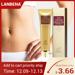 Crema para eliminar cicatrices de acné LANBENA crema facial de reparación manchas de acné tratamiento para espinillas crema blanqueadora estrías 30ml