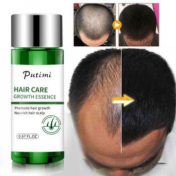 Do włosów serum wzrostu istotą Anti-zapobieganie utrata włosów leczyć skórę głowy wzmocnij odżywianie korzenia przyspieszyć wzrost włosów TSLM2 tanie i dobre opinie CN (pochodzenie) 0 67FL OZ Hair Growth Serum Hair Growth Essence Wholesale Dropshiping