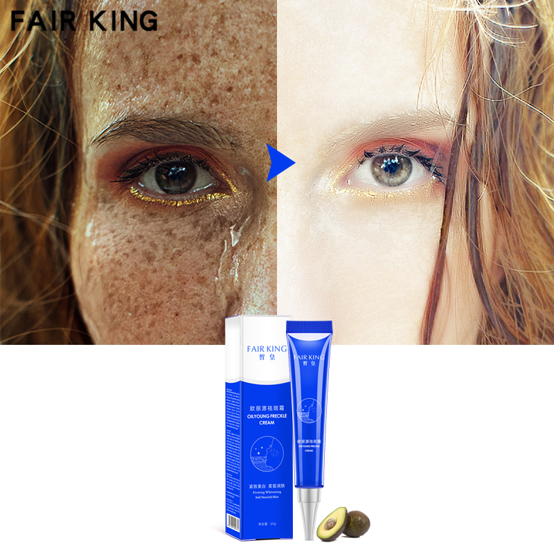 Effective Whitening Freckle Cream 20g Moisturizing Remove Melasma Acne Spots Treatment Pigment Melanin Whitening Skin Care