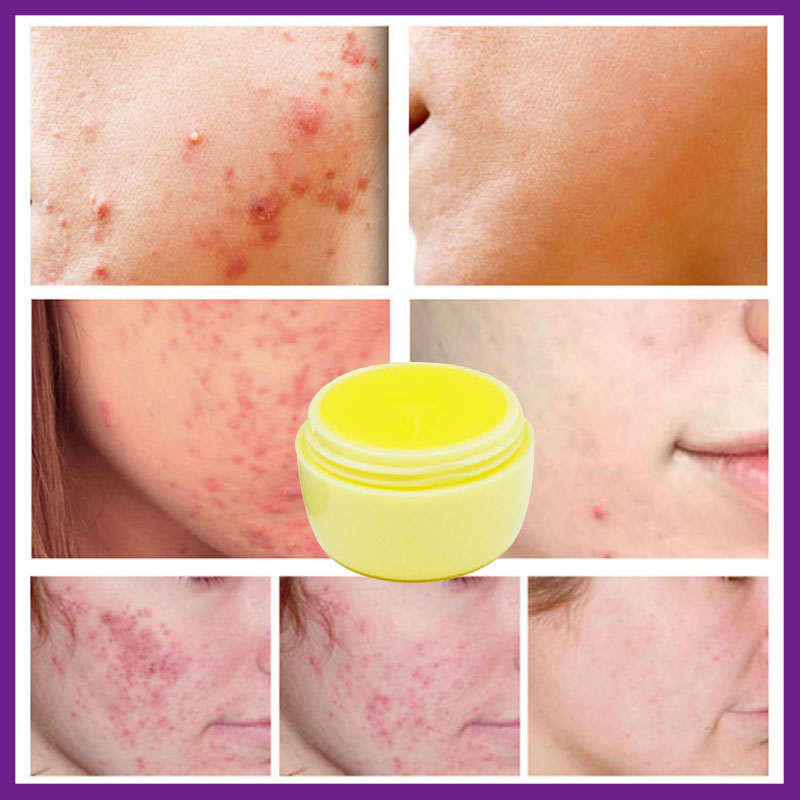 Original Vietnam Curcuma Oil Acne Ointment Ginger Remove Scar Cream Pores Acne Treatment Face Cream Vitamin B2 Natural Herbal