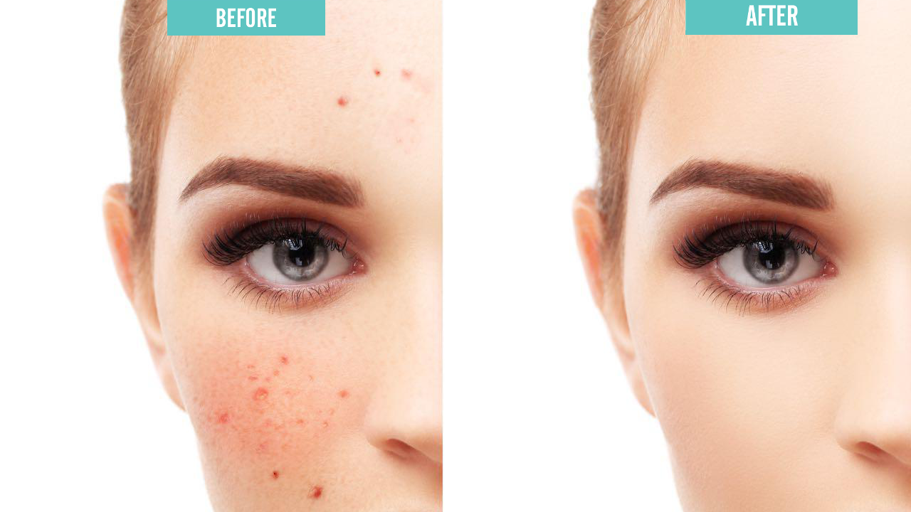 oil free acne cleanser 2.5% 237ml - 3