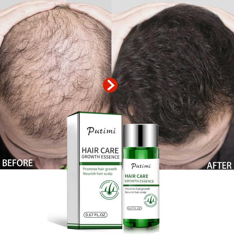 Efero poderoso soro de crescimento do cabelo que impede a perda de cabelo calvície soro produtos para mulheres
