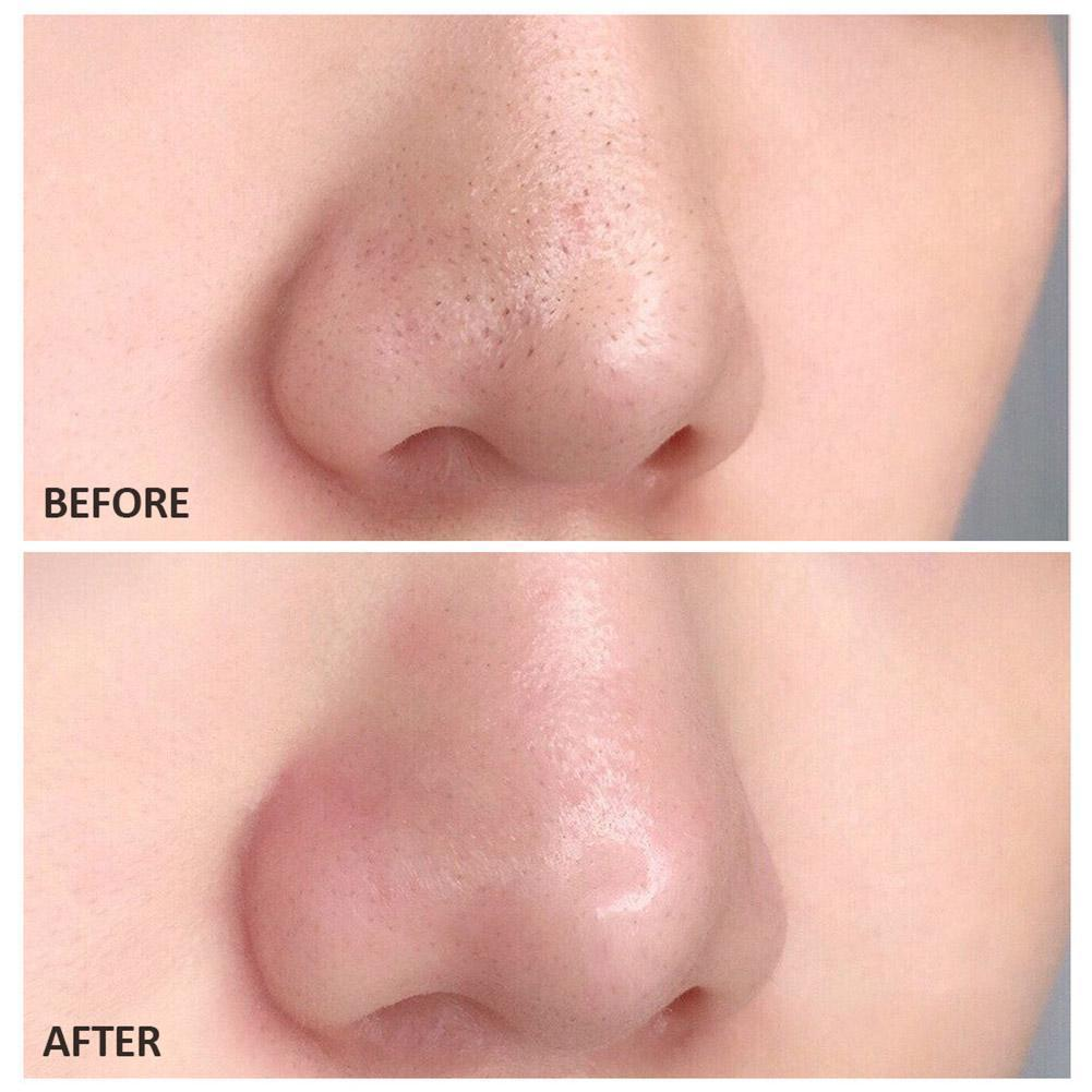 Remover Blackhead Peelable Nasal Membrane Nose Strips Deep Face Acne Cleaner Head Black Pore Cleansing Sticker T3C8