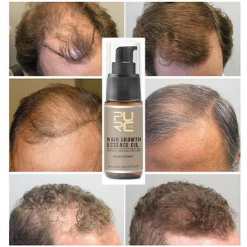 Fast Hair Growth Essence Oil Hair Loss Treatment Help for hair Growth Hair Care Product For Women Men