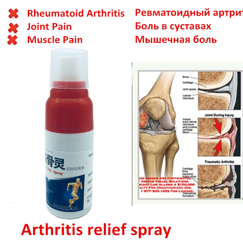 Pain Relief Spray Rheumatism Arthritis,Muscle Sprain Knee Waist Pain Back Shoulder Spray Tiger Orthopedic Plaster Health Care