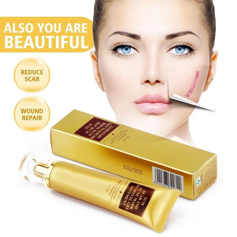 30g Acne Scar Removal Cream Skin Repair Face Cream Acne Spots Treatment