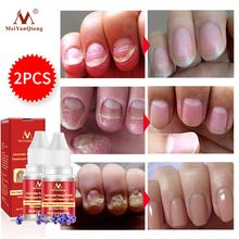 Nail Repair Essence Serum Fungal Treatment Remove Onychomycosis Toe Nourishing Brightening Hand And Foot Care