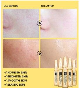 Image 5 - SENANA Face Serum Skin Whitening Essence Hyaluronic Acid Nicotinamide Ampoule Anti Aging Acne Shrink Pores Hydration Skin Care