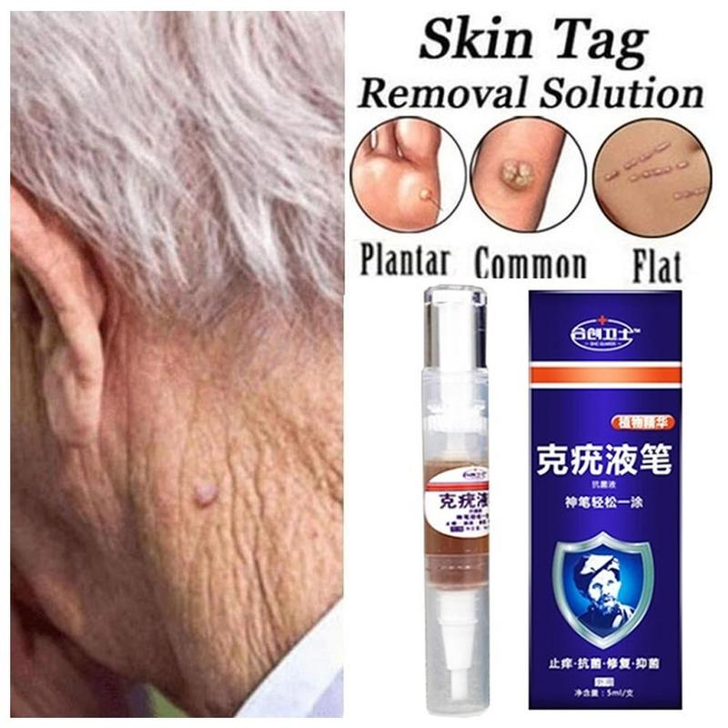 Ultra Strength Skin Tag Remover Liquid Pen Foot Corn Skin Tag Mole Genital Wart Remover 12hours Tu Kill Medical Tools Useful 5ml