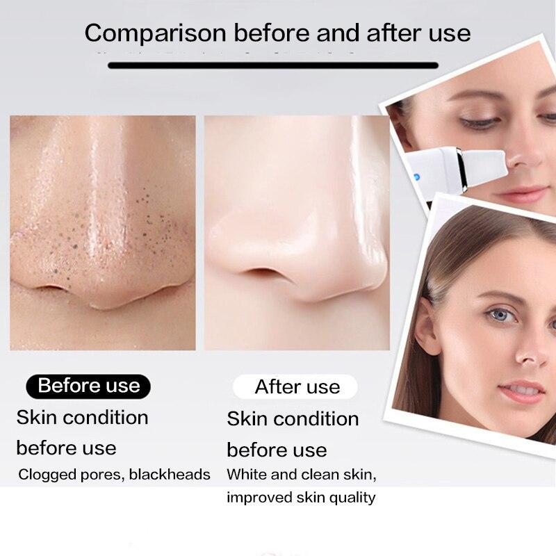 espinha removedor beleza rosto cuidados com pele ferramenta 03