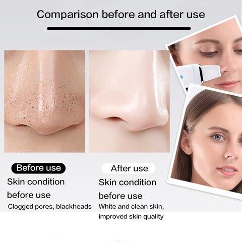 espinha removedor beleza rosto cuidados com pele ferramenta