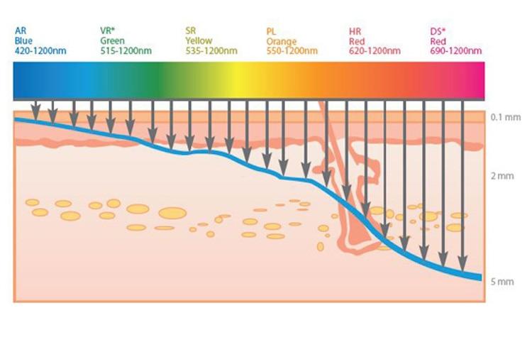 Multifunction DPL SHR machine blood vessels removal IPL hair removal 755nm