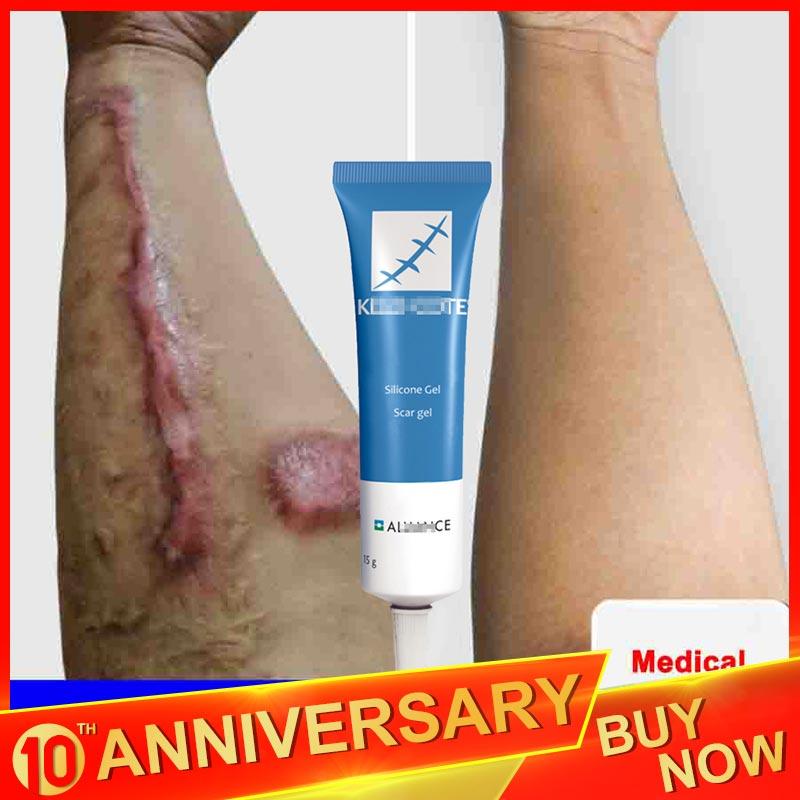 LAIKOU 15g Scar Removal Cream Face Cream For Face Acne Scar Stretch Marks Remover Cream Skin Repair Face Cream Acne Spots Ba Ke