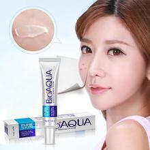 BIOAQUA 30g Face Acne Treatment Blackhead Remova Anti Cream Oil Control Shrink Pores Scar Remove Care Whitening