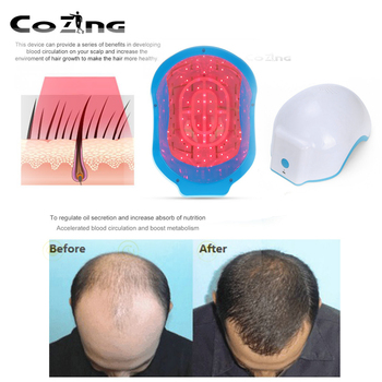 Hair Regrow Laser Helmet 80 Medical Diodes Treatment Hair Fast Regrowth Cap For Middle-Aged Baldness Men