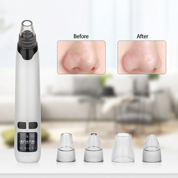 VeryYu Face Care Blackhead Remover Face Care Personal Care  VeryYu the Best Online Store for Women Beauty and Wellness Products