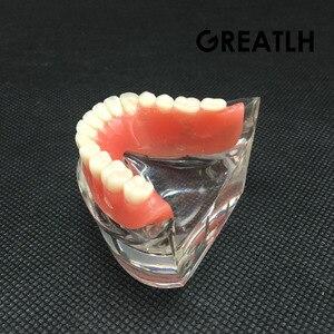 Image 2 - Aparelho mandibular dental interior, modelo mandibular mandibular com estudo de ensino dental de restauração de instrumentos