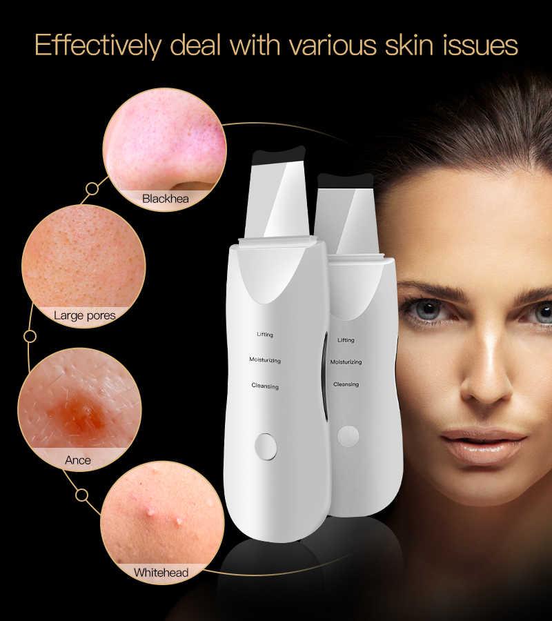 peeling Ultra sônica purificador da pele facial limpeza peeling máquina poros cleaner ems led anti envelhecimento massageador facial ems mesotherapy radiofrequência