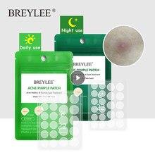 Tratamento da acne adesivos soro rosto creme acne essência folha de cuidados faciais dia da noite uso máscara cuidados com a pele