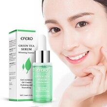 EFERO Grün Tee Ätherisches Serum Gesicht Pflege Haut Akne Behandlung Mitesser Entferner Anti Narbe Flecken Feuchtigkeitsspendende Ätherisches Essenz