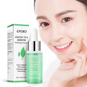 Image 1 - EFERO sérum essentiel au thé vert, soins du visage, traitement de lacné, élimine les points noirs et les cicatrices, hydratant, Essence essentielle