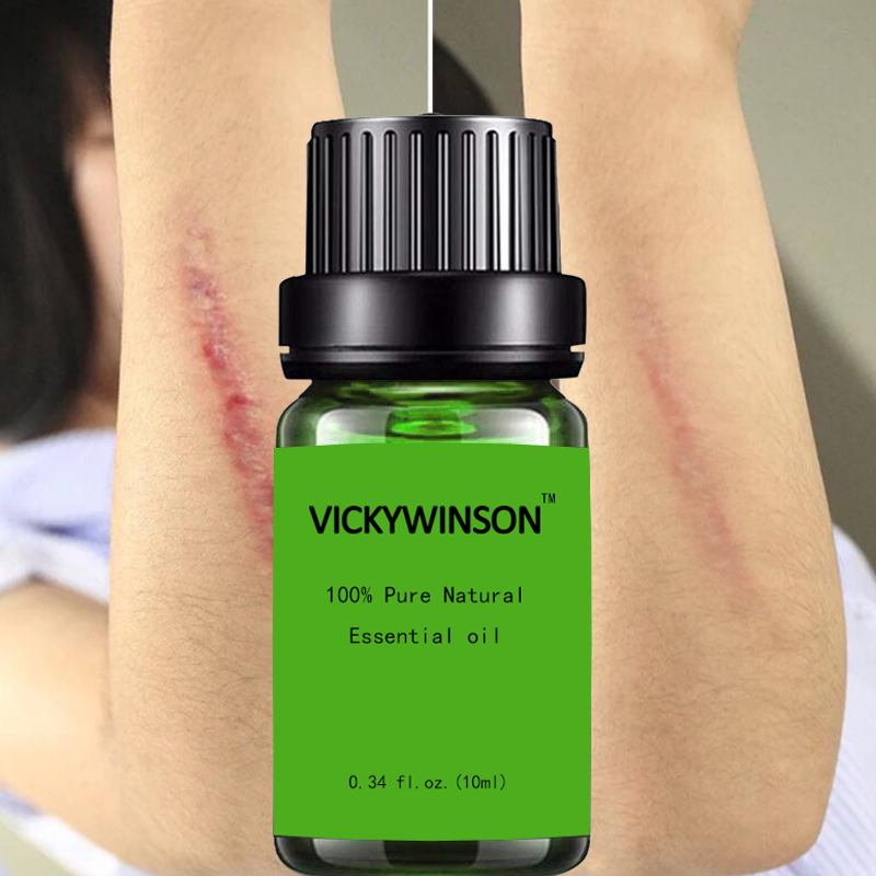 Essential Massage oils Scar Removal Lavender Oil For Pregnant Women Hyaluronic Acid Serum Oil Essential Face Anti Acne image