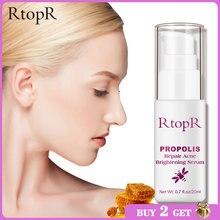 Suero abrillantador de acné para reparación de propóleo RtopR, manchas de acné, Sérum de limpieza, reduce los poros, elimina el tratamiento del acné y el control del aceite