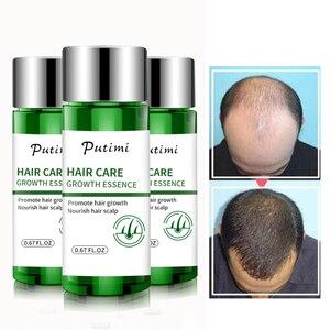 Putimi Уход за волосами эссенция для роста против выпадения волос предотвращает Здоровье Красота Сыворотка для роста густых волос продукты дл...