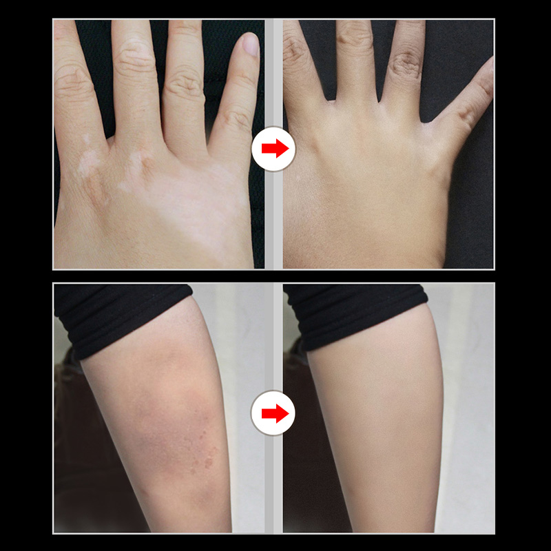 2 Pcs Skin Make-up Concealer Cream Tattoo Scar Birthmark Cover-up Cream V9-Drop