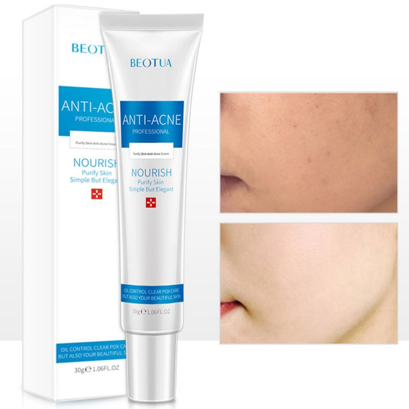 Nourishing Moisturizing Shrinking Pores Water And Oil Balance Men Women Acne Cream image